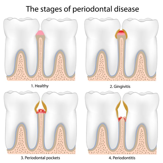periodontal disease stages Springfield, Oregon dentist