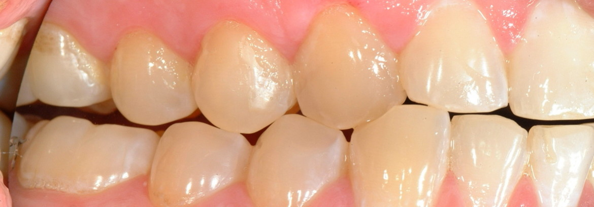What to Do in the Case of Bleeding Gums